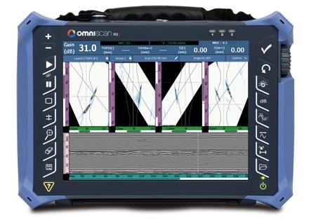 Equipo de ultrasonidos portátil